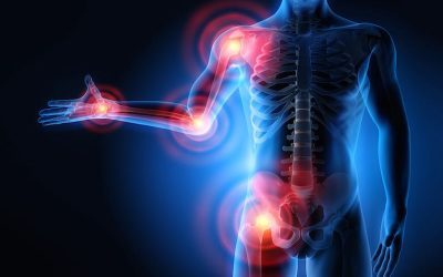Hoe kan een ontsteking die gewrichtspijn veroorzaak verminderd worden?